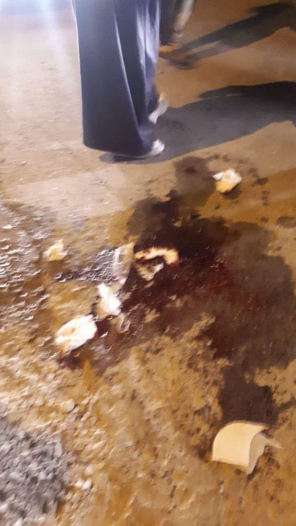 انفجار ترقه در عروسی در فیروز آباد شش مصدوم عروسی در نجف آباد+تصاویر شش مصدوم عروسی در نجف آباد+تصاویر 2                    576x1024